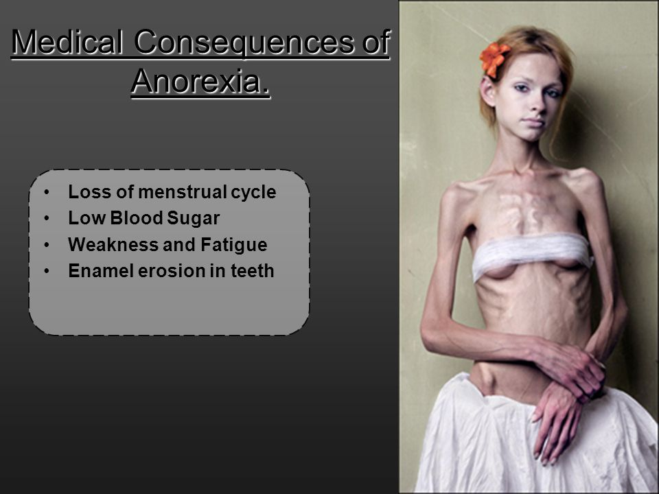 Medical Consequences of Anorexia.