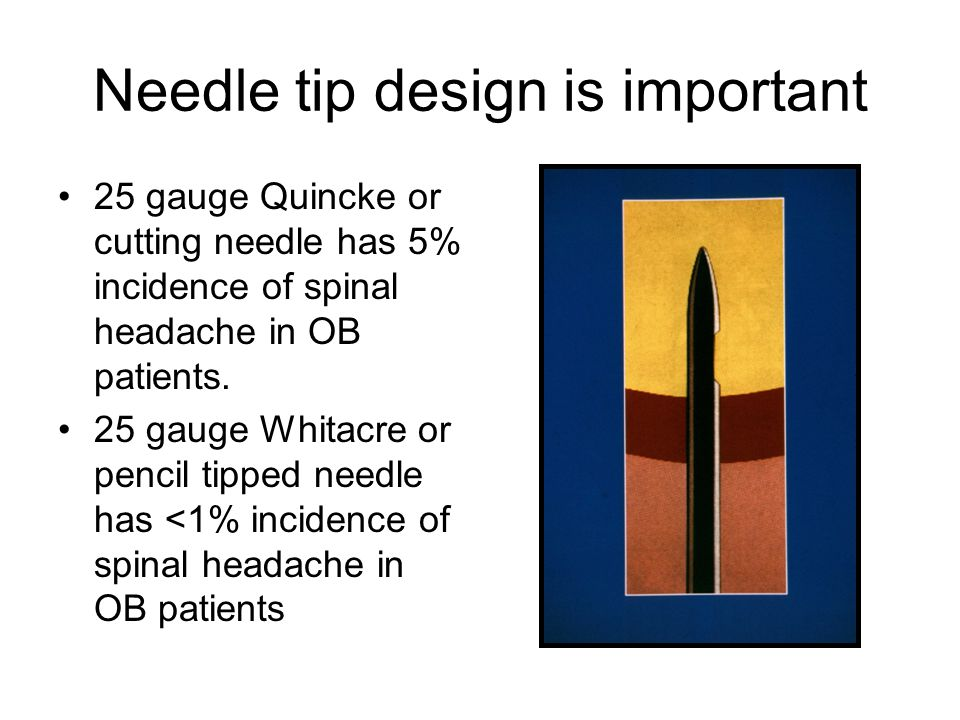 Needle tip design is important 25 gauge Quincke or cutting needle has 5% incidence of spinal headache in OB patients.