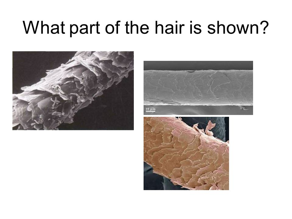 What part of the hair is shown