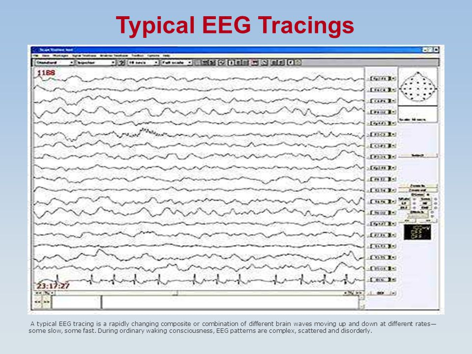 Typical EEG Tracings A typical EEG tracing is a rapidly changing composite or combination of different brain waves moving up and down at different rates— some slow, some fast.