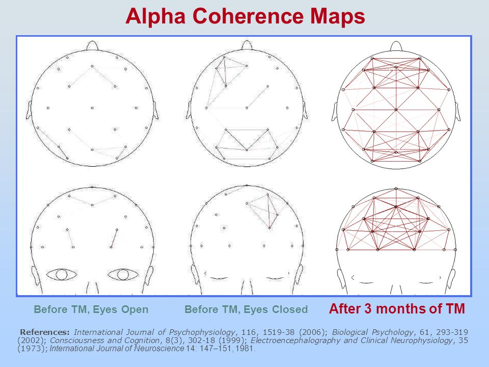 Front Middle Alpha Coherence Maps Before TM, Eyes Open After 3 months of TM References: International Journal of Psychophysiology, 116, 1519-38 (2006); Biological Psychology, 61, 293-319 (2002); Consciousness and Cognition, 8(3), 302-18 (1999); Electroencephalography and Clinical Neurophysiology, 35 (1973); International Journal of Neuroscience 14: 147–151, 1981.
