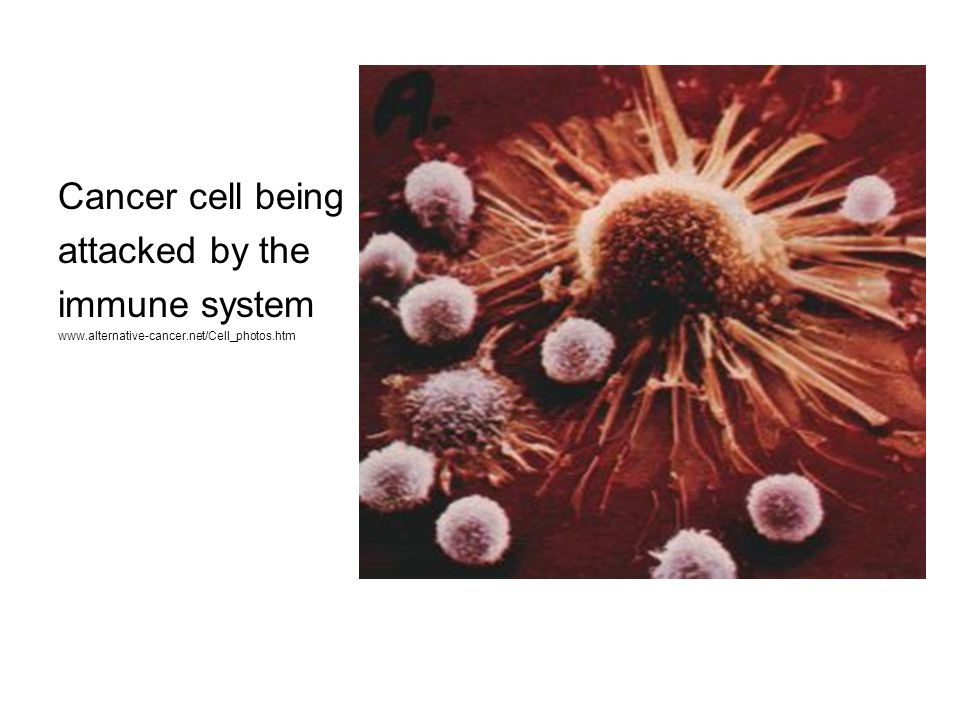 Cancer cell being attacked by the immune system www.alternative-cancer.net/Cell_photos.htm
