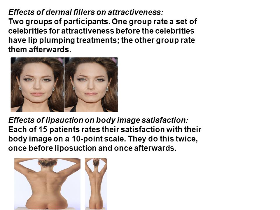 Effects of dermal fillers on attractiveness: Two groups of participants.
