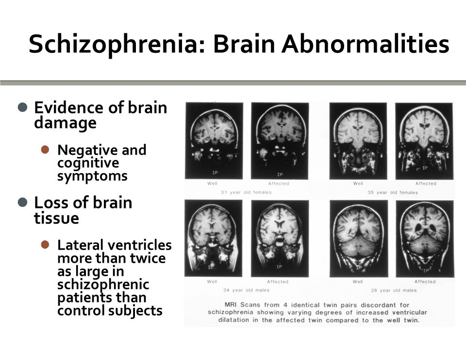 Schizophrenia: Brain Abnormalities Evidence of brain damage Evidence of brain damage Negative and cognitive symptoms Negative and cognitive symptoms Loss of brain tissue Loss of brain tissue Lateral ventricles more than twice as large in schizophrenic patients than control subjects Lateral ventricles more than twice as large in schizophrenic patients than control subjects