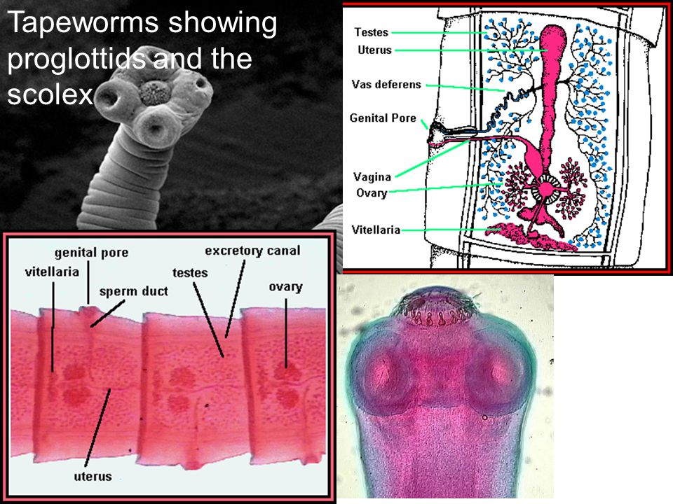 Tapeworms showing proglottids and the scolex