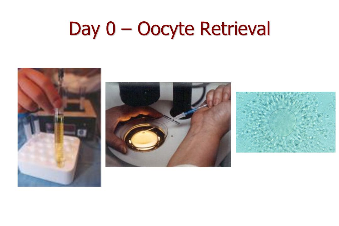 Day 0 – Oocyte Retrieval