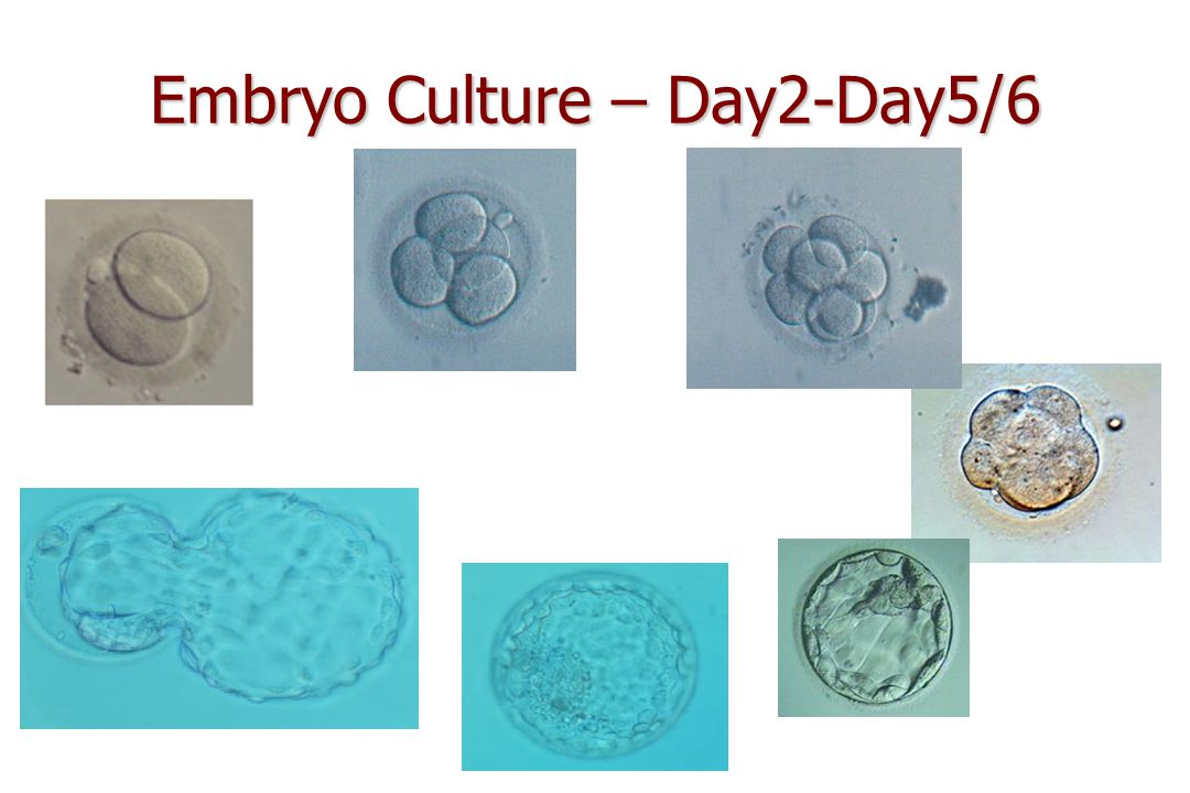Embryo Culture – Day2-Day5/6