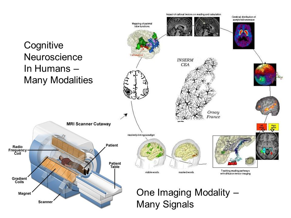 Cognitive Neuroscience In Humans – Many Modalities One Imaging Modality – Many Signals