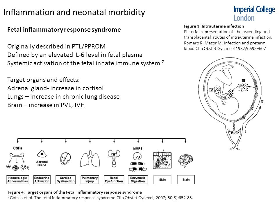 Inflammation and neonatal morbidity Fetal inflammatory response syndrome Originally described in PTL/PPROM Defined by an elevated IL-6 level in fetal plasma Systemic activation of the fetal innate immune system 7 Target organs and effects: Adrenal gland- increase in cortisol Lungs – increase in chronic lung disease Brain – increase in PVL, IVH Figure 3.