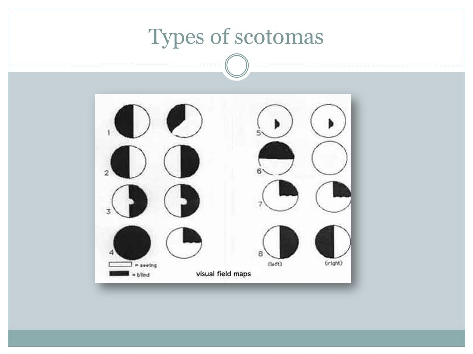 Types of scotomas