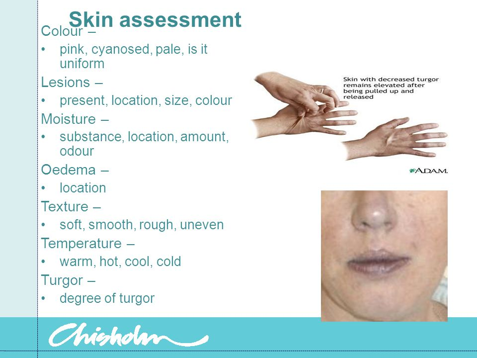 Skin assessment Colour – pink, cyanosed, pale, is it uniform Lesions – present, location, size, colour Moisture – substance, location, amount, odour Oedema – location Texture – soft, smooth, rough, uneven Temperature – warm, hot, cool, cold Turgor – degree of turgor