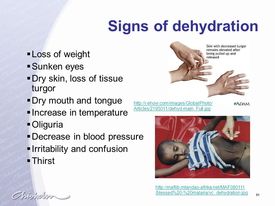 51 Signs of dehydration  Loss of weight  Sunken eyes  Dry skin, loss of tissue turgor  Dry mouth and tongue  Increase in temperature  Oliguria  Decrease in blood pressure  Irritability and confusion  Thirst http://maflib.mtandao-afrika.net/MAF080111 /blessed%20-%20malaria/vc_dehydration.jpg http://i.ehow.com/images/GlobalPhoto/ Articles/2195011/dehyd-main_Full.jpg
