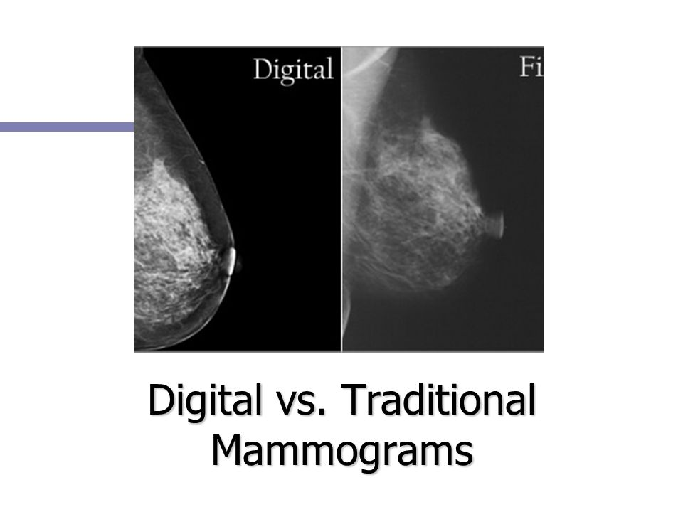 Digital vs. Traditional Mammograms