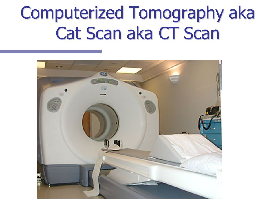 Computerized Tomography aka Cat Scan aka CT Scan