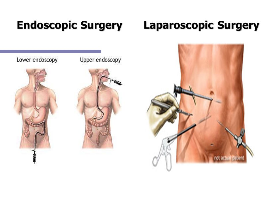 Endoscopic Surgery Laparoscopic Surgery
