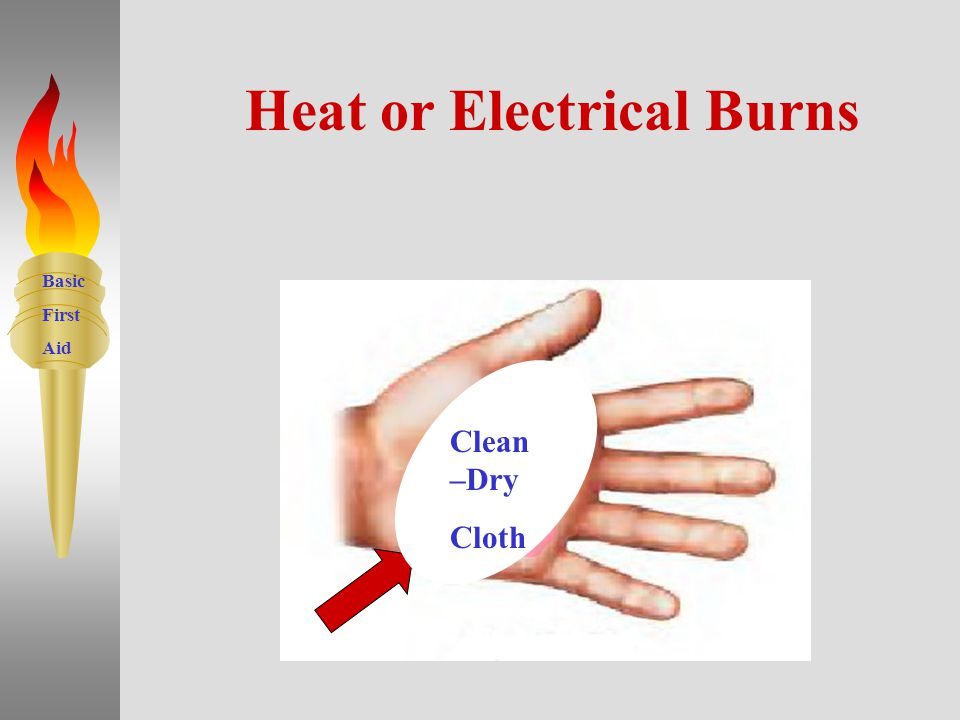 Basic First Aid 8 Heat or Electrical Burns DO Apply Ointments or Cream Break Blisters DO