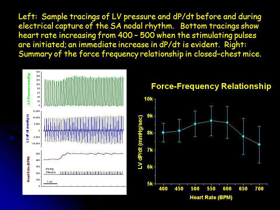Left: Sample tracings of LV pressure and dP/dt before and during electrical capture of the SA nodal rhythm.