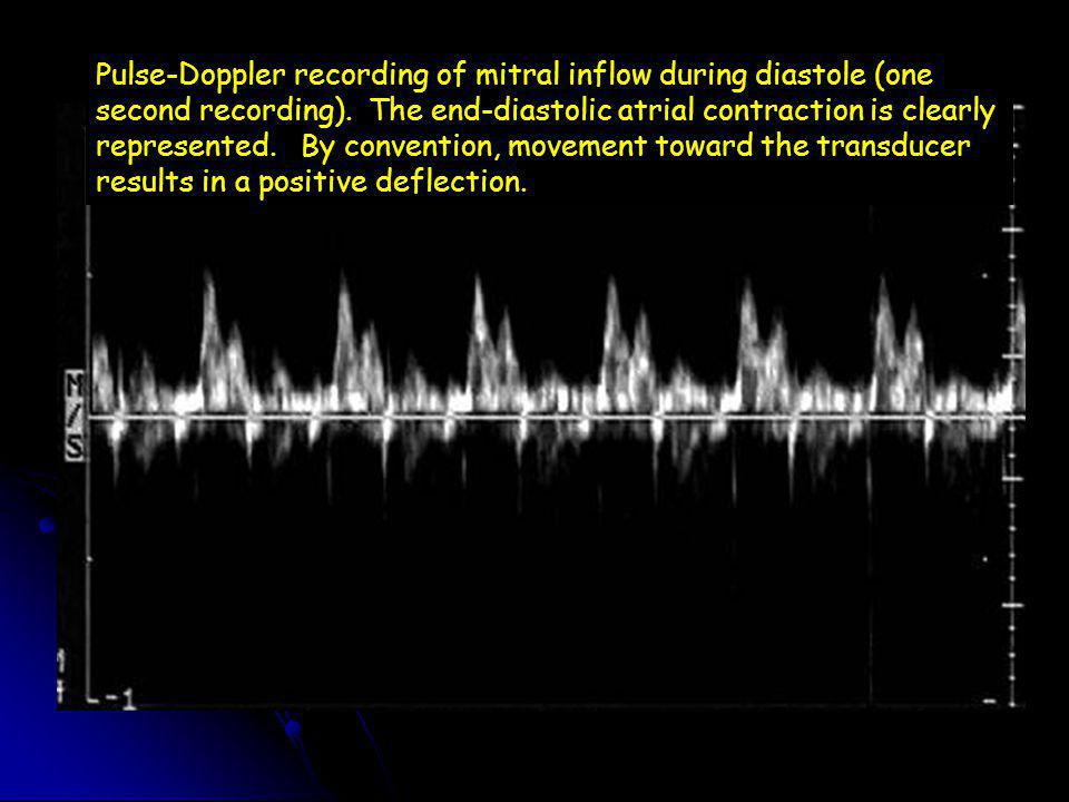 Pulse-Doppler recording of mitral inflow during diastole (one second recording).