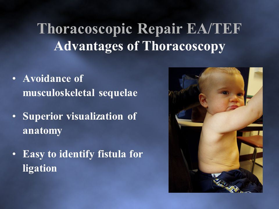 Thoracoscopic Repair EA/TEF Advantages of Thoracoscopy Avoidance of musculoskeletal sequelae Superior visualization of anatomy Easy to identify fistula for ligation
