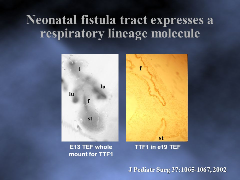 Neonatal fistula tract expresses a respiratory lineage molecule E13 TEF whole mount for TTF1 TTF1 in e19 TEF J Pediatr Surg 37:1065-1067, 2002
