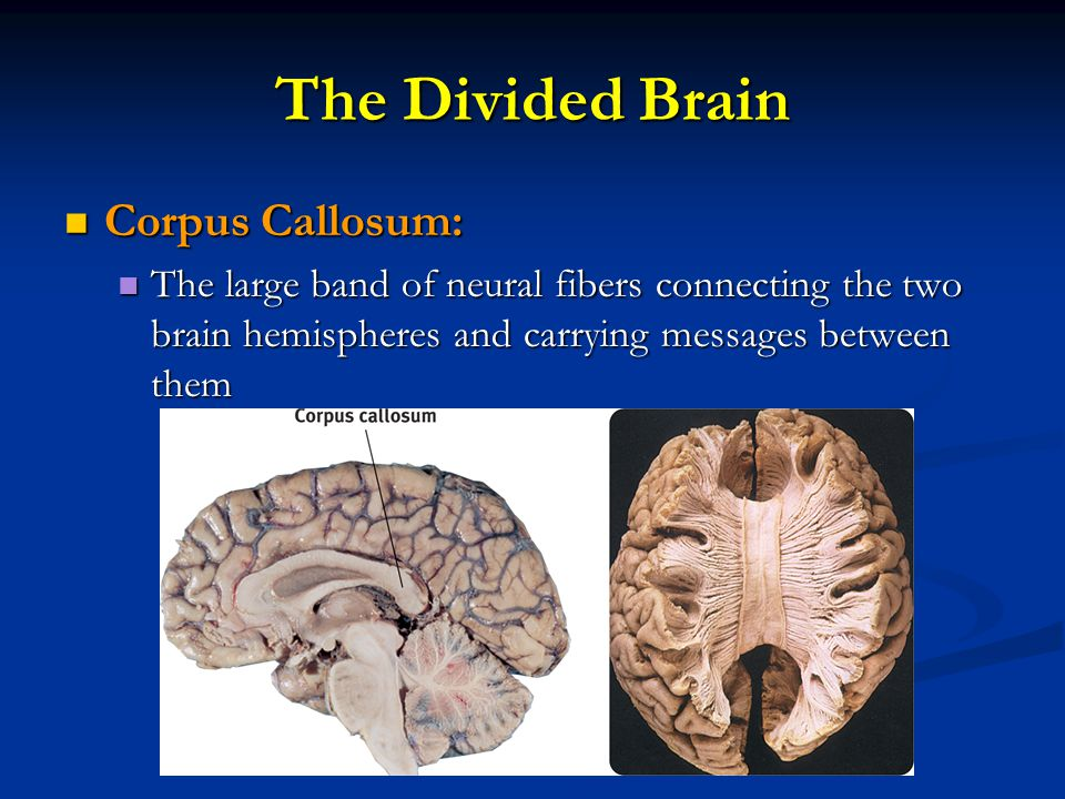 The Divided Brain Corpus Callosum: Corpus Callosum: The large band of neural fibers connecting the two brain hemispheres and carrying messages between them The large band of neural fibers connecting the two brain hemispheres and carrying messages between them