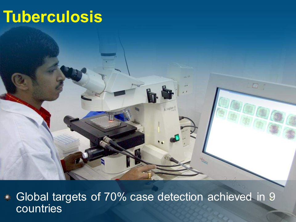 Tuberculosis Global targets of 70% case detection achieved in 9 countries