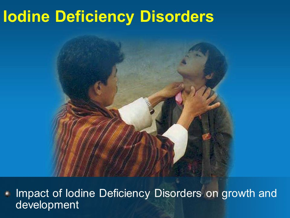 Iodine Deficiency Disorders Impact of Iodine Deficiency Disorders on growth and development