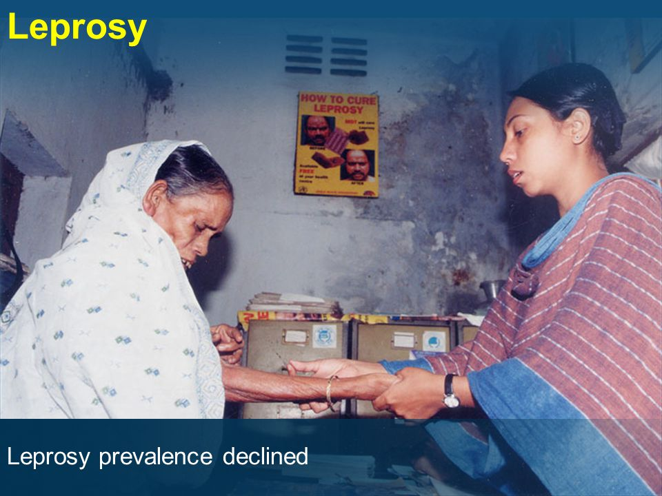 Leprosy prevalence declined Leprosy