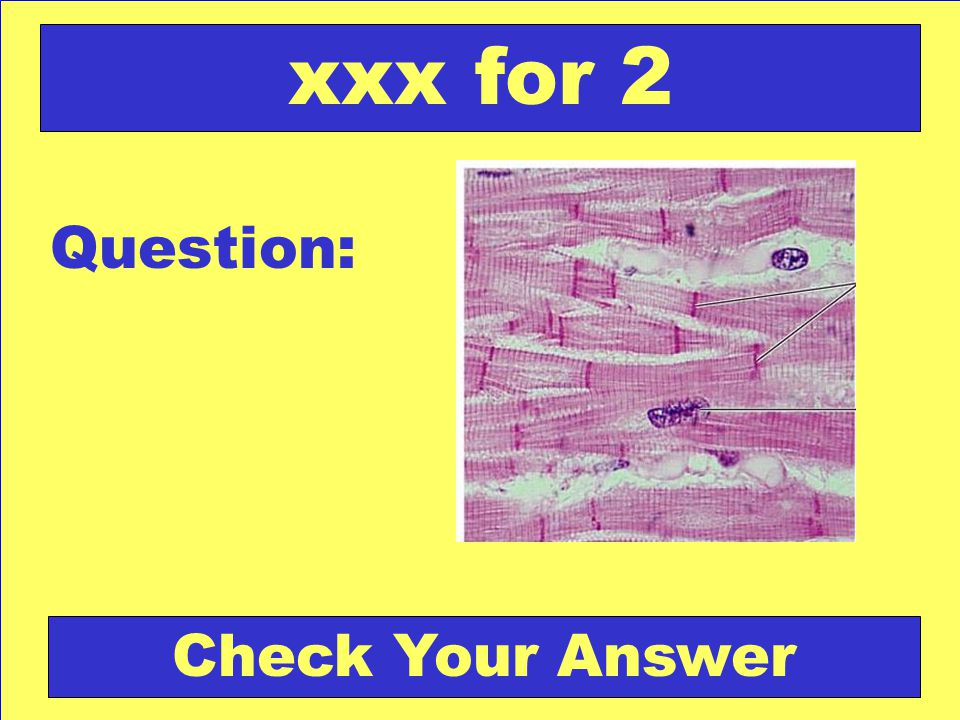 Question: xxx for 2 Check Your Answer