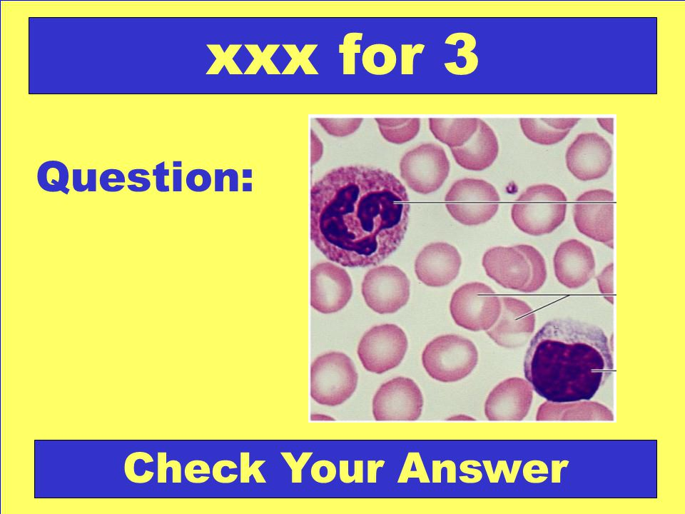 Question: xxx for 3 Check Your Answer