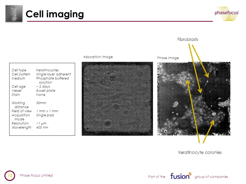 Phase Focus Limited 15 Part of the group of companies Cell imaging Absorption image Phase image Fibroblasts Keratinocyte colonies Cell typeKeratinocytes Cell SystemSingle layer adherent MediumPhosphate buffered solution Cell age~ 2 days Vessel8-well plate StainNone Working30mm distance Field of view1 mm x 1 mm Acquisition Single pass mode Resolution~1 µm Wavelength405 nm