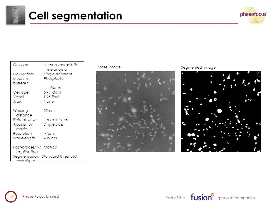 Phase Focus Limited 18 Part of the group of companies Cell segmentation Cell type Human metastatic melanoma Cell System Single adherent Medium Phosphate buffered solution Cell age 5 - 7 days Vessel T-25 flask Stain None Working 30mm distance Field of view 1 mm x 1 mm Acquisition Single pass mode Resolution ~1µm Wavelength 405 nm Post-processing Matlab application Segmentation Standard threshold technique Phase image Segmented image