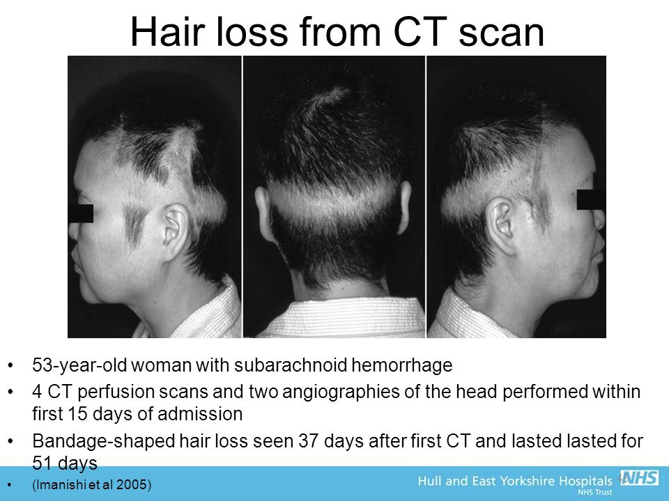 45 Hair loss from CT scan 53-year-old woman with subarachnoid hemorrhage 4 CT perfusion scans and two angiographies of the head performed within first 15 days of admission Bandage-shaped hair loss seen 37 days after first CT and lasted lasted for 51 days (Imanishi et al 2005)
