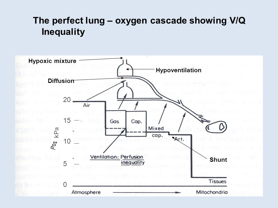 The perfect lung – oxygen cascade showing V/Q Inequality Hypoventilation Shunt Diffusion 20 15 10 5 0 kPa Hypoxic mixture