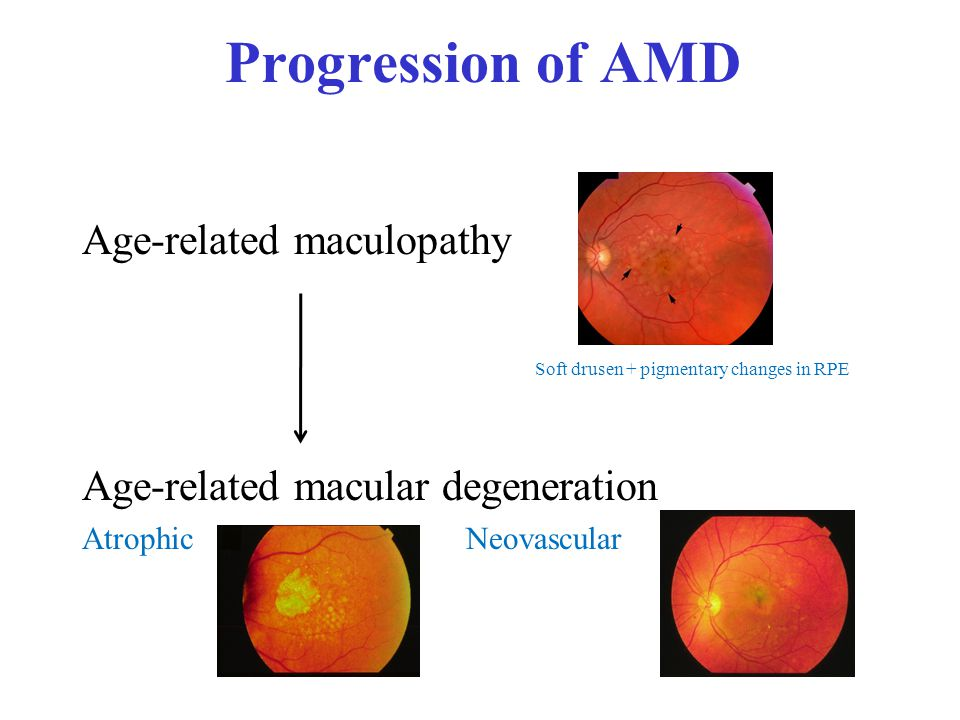 Progression of AMD Age-related maculopathy Age-related macular degeneration AtrophicNeovascular Soft drusen + pigmentary changes in RPE