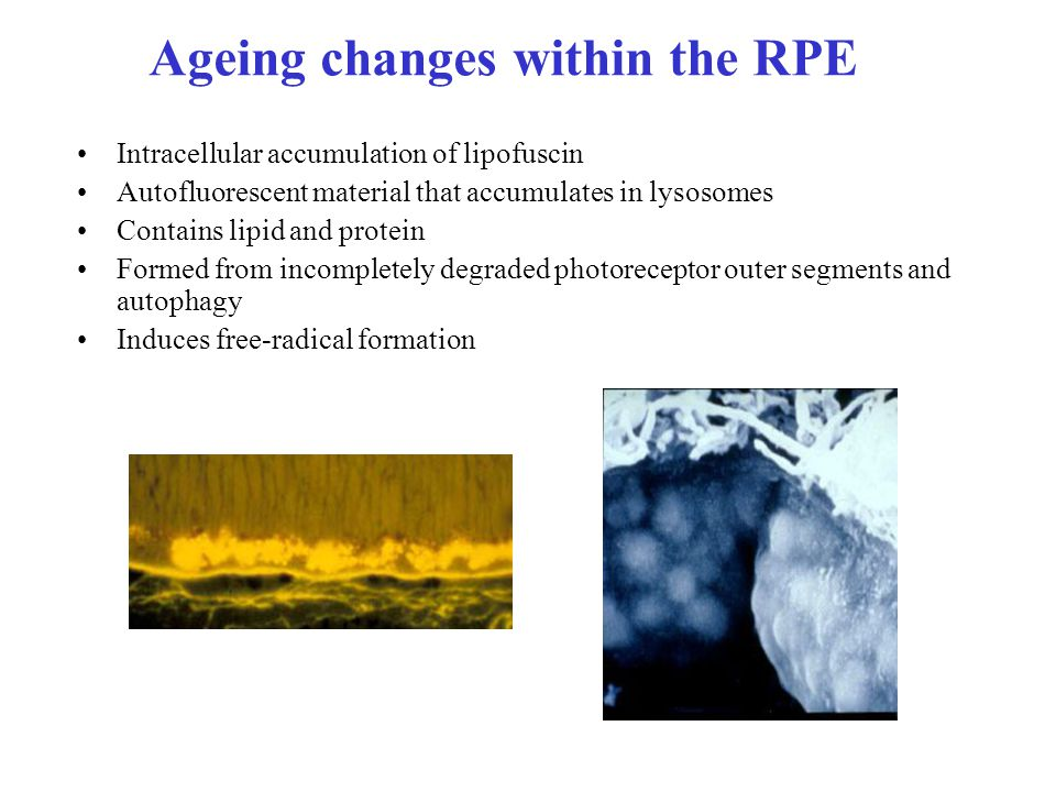 Ageing changes within the RPE Intracellular accumulation of lipofuscin Autofluorescent material that accumulates in lysosomes Contains lipid and protein Formed from incompletely degraded photoreceptor outer segments and autophagy Induces free-radical formation