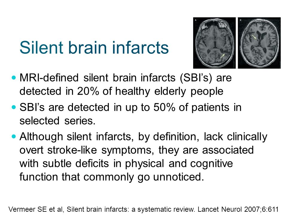 Silent brain infarcts MRI-defined silent brain infarcts (SBI's) are detected in 20% of healthy elderly people SBI's are detected in up to 50% of patients in selected series.