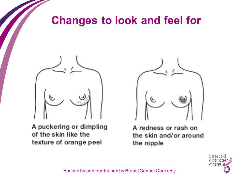 For use by persons trained by Breast Cancer Care only Changes to look and feel for