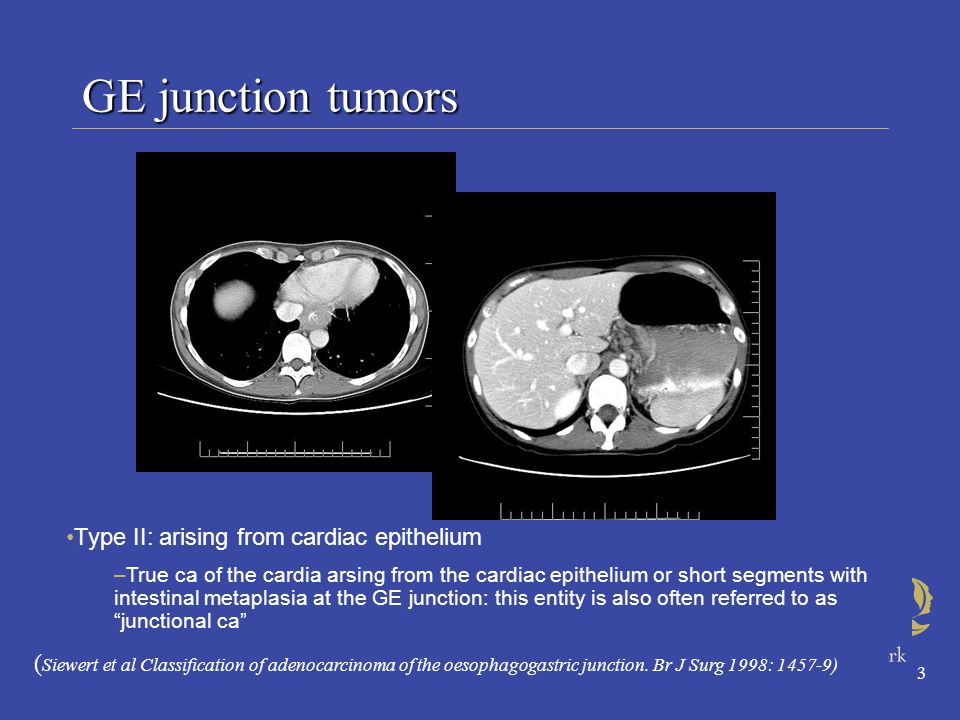 3 GE junction tumors Type II: arising from cardiac epithelium –True ca of the cardia arsing from the cardiac epithelium or short segments with intestinal metaplasia at the GE junction: this entity is also often referred to as junctional ca ( Siewert et al Classification of adenocarcinoma of the oesophagogastric junction.
