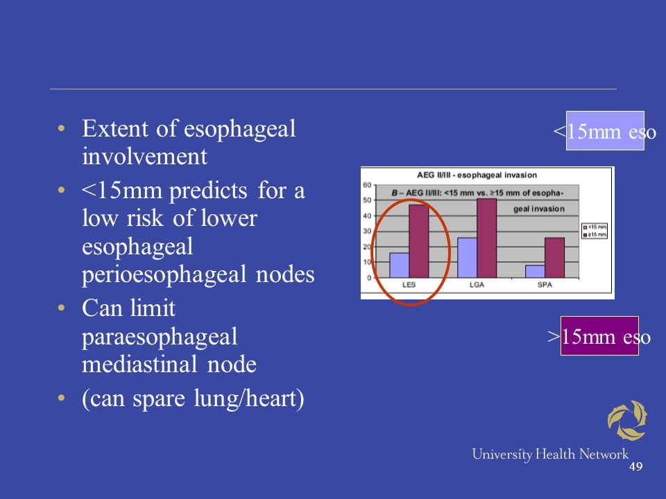 49 Extent of esophageal involvement <15mm predicts for a low risk of lower esophageal perioesophageal nodes Can limit paraesophageal mediastinal node (can spare lung/heart) <15mm eso >15mm eso