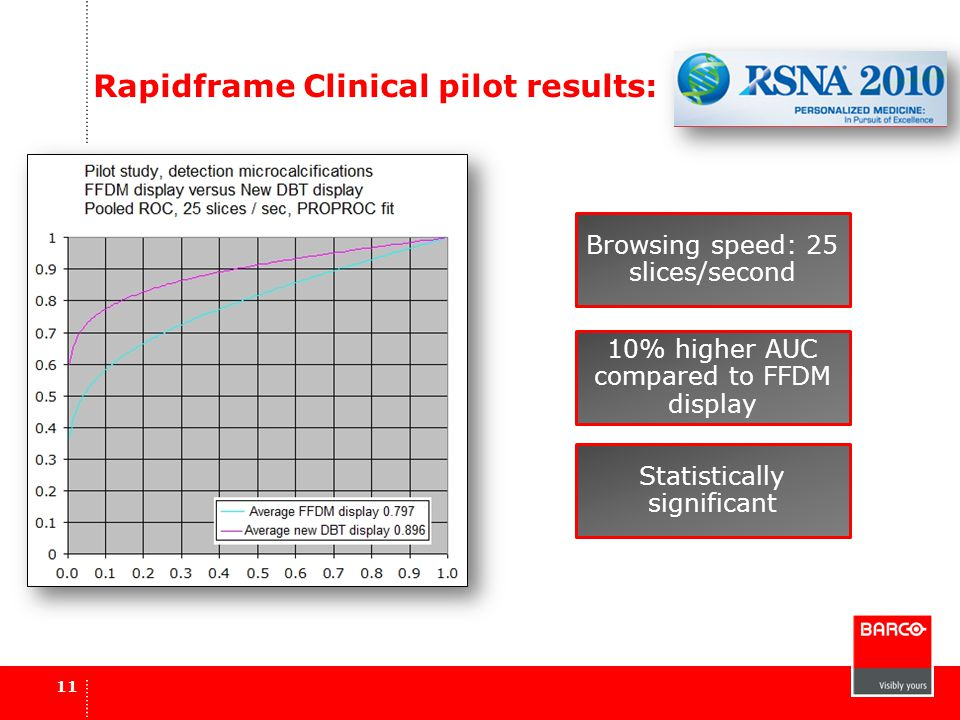 Rapidframe Clinical pilot results: 11 Browsing speed: 25 slices/second 10% higher AUC compared to FFDM display Statistically significant