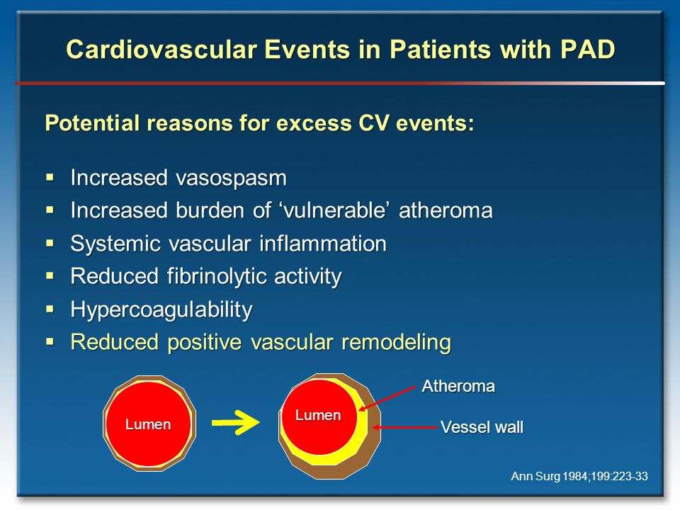 Cardiovascular Events in Patients with PAD Ann Surg 1984;199: Potential reasons for excess CV events:  Increased vasospasm  Increased burden of 'vulnerable' atheroma  Systemic vascular inflammation  Reduced fibrinolytic activity  Hypercoagulability  Reduced positive vascular remodeling Lumen LumenAtheroma Vessel wall