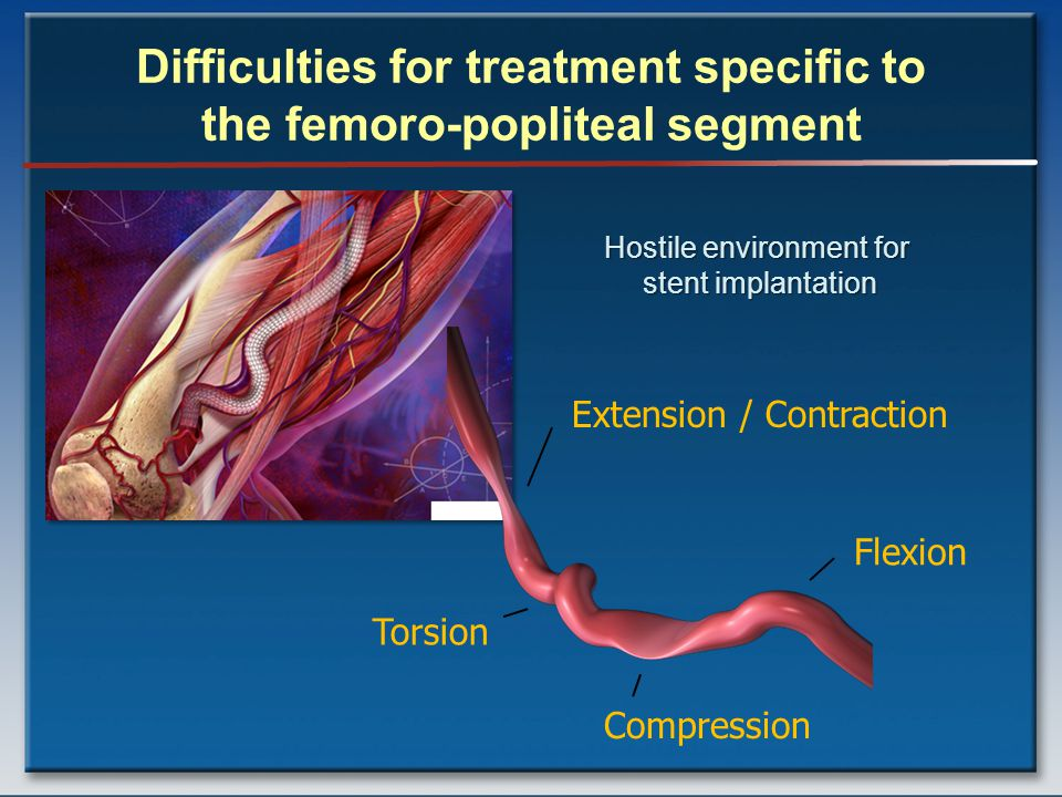 Difficulties for treatment specific to the femoro-popliteal segment Extension / Contraction Torsion Compression Flexion Hostile environment for stent implantation
