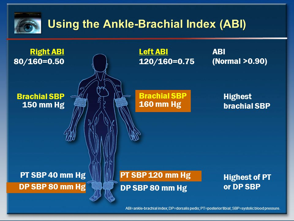 Using the Ankle-Brachial Index (ABI) ABI=ankle-brachial index; DP=dorsalis pedis; PT=posterior tibial; SBP=systolic blood pressure.
