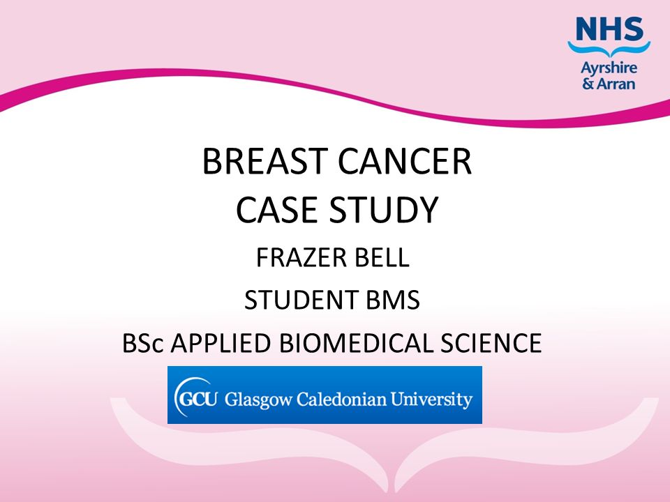 BREAST CANCER CASE STUDY FRAZER BELL STUDENT BMS BSc APPLIED BIOMEDICAL SCIENCE