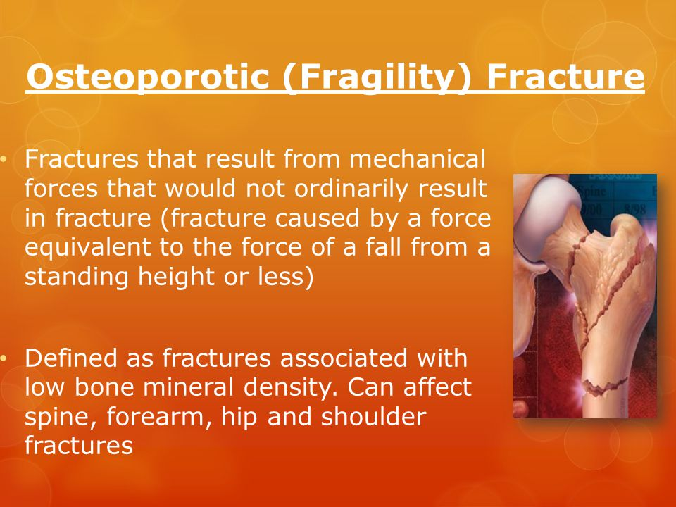 Osteoporotic (Fragility) Fracture Fractures that result from mechanical forces that would not ordinarily result in fracture (fracture caused by a force equivalent to the force of a fall from a standing height or less) Defined as fractures associated with low bone mineral density.